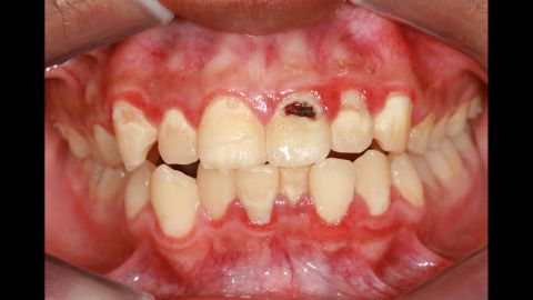 """Studies have shown that <a href=""""https://www.ncbi.nlm.nih.gov/pmc/articles/PMC5013478/"""" target=""""_blank"""" target=""""_blank"""">tooth loss</a> and <a href=""""http://jech.bmj.com/content/71/1/37"""" target=""""_blank"""" target=""""_blank"""">inflamed gums</a> (periodontitis) are markers of heart disease."""