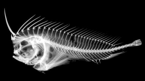 An X-ray of a Whiskered Prowfish, a kind of stonefish