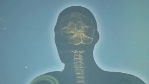 this is your brain on pain health orig_00001025.jpg