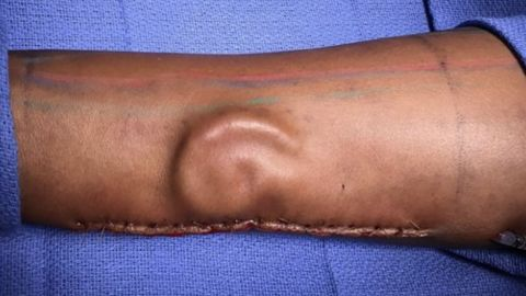 Yes, that's an ear, growing under the skin of an arm.