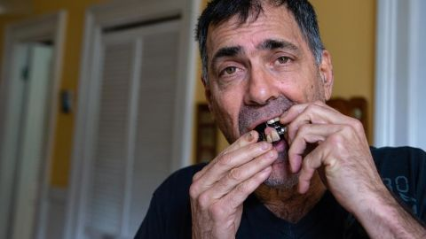 David Tuller removes his partial dentures. During a period of intense dental care, he often went out with missing front teeth.