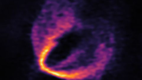 Astronomers have identified three discrete disturbances in the young star's gas-filled disc.