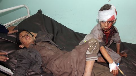 Wounded children in hospital after the attack.
