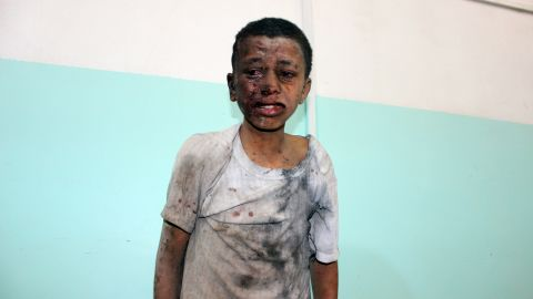 A child awaits treatment at a hospital after the airstrike.