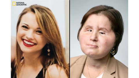 Katie's face in 2013, before her suicide attempt (on left). Katie after her face transplant procedure, which took place last year (on right). She is now in recovery.
