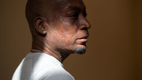 Johnson watches in court as the first cancer patient to take Monsanto to trial over Roundup.