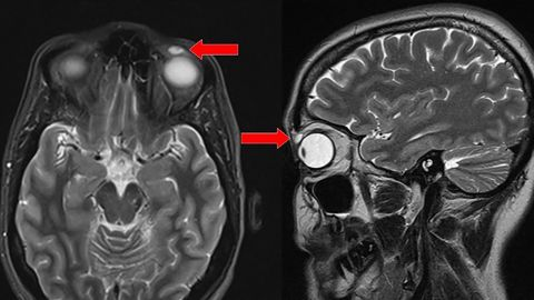 T2-weighted MRI of the head: transverse and sagittal views.Red arrow: high-intensity signal nodular lesion in the left upper eyelid.