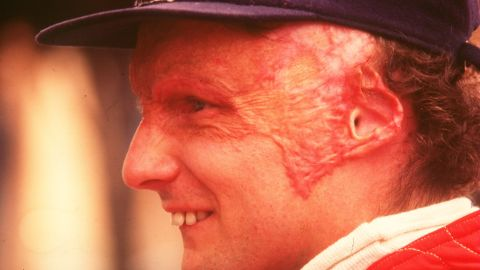Three-time Formula One world champion Niki Lauda suffered extensive burns to his head and inhaled toxic fumes that damaged his lungs following a crash at Nürburgring in 1976. The incident took place at a point on the 22.8 km circuit that was almost impossible to access and Lauda had to be pulled from the wreckage by four fellow drivers. After the crash, the Nürburgring was removed from the F1 calendar for the following season.
