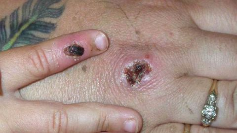 Symptoms of monkeypox include rashes and muscle aches.