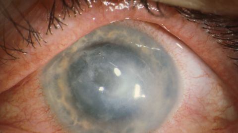 Some patients with Acanthamoeba keratitis require cornea transplants.