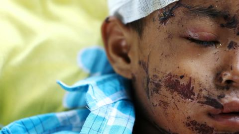 An injured person rests inside a Palu hospital on October 4.