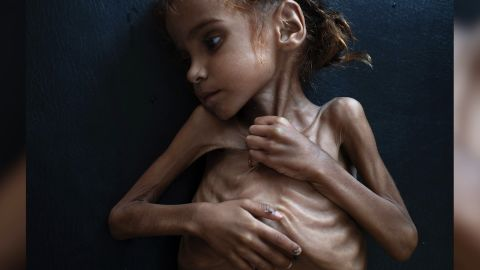 """#NEWS:  Girl in iconic NYT image depicting Yemen famine dies ~ Yemen Health Ministry Amal Hussein, a 7-year-old girl whose iconic image was captured by the New York Times has died, the Yemeni Health Ministry has confirmed. The stark photo of her emaciated body is one of the searing images of the Yemen's civil war.  A week after the image was published, and amid the international furor over the brutal killing of Saudi journalist Jamal Khashoggi in Saudi Arabia's consulate in Istanbul, US Secretary of Defense Jim Mattis and Secretary of State Mike Pompeo called on the participants in Yemen's 3-year civil war to agree to a ceasefire """"in the next 30 days"""". ~From journalist Hakim Almasmari in Sanaa.  Opening line by CNN's Dan Wright in London. ~Background from excellent digital write by Kevin Liptak, Elise Labott, and Zachary Cohen"""