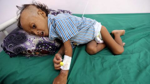 A 2-year-old boy lies on a bed at the al-Thawra hospital in Hodeidah where he receives treatment for malnutrition on November 17.