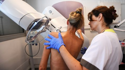 Calculating a more precise risk of developing breast cancer could influence prevention and treatment of the disease.