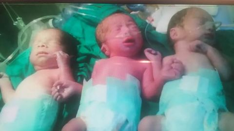 One of Tursun's few pictures of her three triplets together before Mohaned died in 2015.