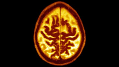 Scientists have developed a simple blood test that can predict Alzheimer's disease by up to 16 years before any symptoms.