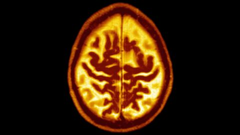Late Onset Alzheimer's Disease Senile Dementia. Symmetric Enlargement Of Cerebral Sulci Suggests That Cortical Gray Matter Is Affected. Axial Cut Away View. (Photo By BSIP/UIG Via Getty Images)