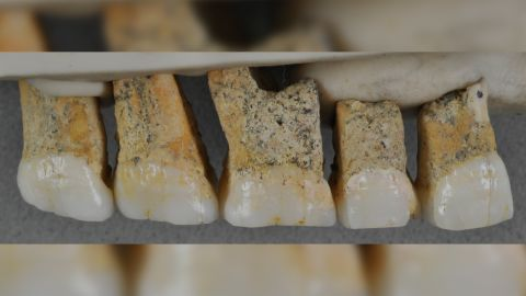 The right upper teeth of the newly discovered species Homo luzonensis. The teeth are smaller and more simplified than those belonging to other Homo species.