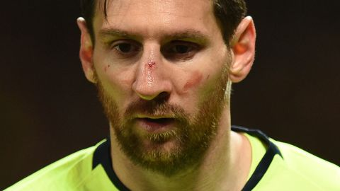 Lionel Messi pictured bruised and bloodied in Barcelona's Champions League quarterfinal match against Manchester United.