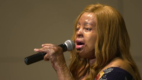"""After appearing on """"America's Got Talent,"""" Kechi began performing all over the world."""