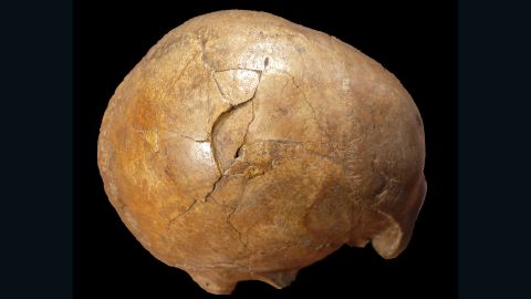 A 33,000-year-old human skull shows evidence of being struck with a club-like object. The right side of the man's head has a large depressed fracture.