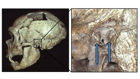 """The La Chapelle-aux-Saints Neanderthal skull shows signs of external auditory exostoses, known as """"surfer's ear"""" growths, in the left canal."""