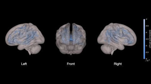 Higher screen use was associated with less well-developed white matter tracts (shown in blue in the image)  throughout the brain.