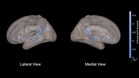 This view shows the three major tracts involved with language and literacy skills: the arcuate fasciculus, shaded in white, which connects brain areas involved with receptive and expressive language. The one in brown supports rapid naming of objects, and the one in beige, visual imagery. The blue color illustrates lower measures of white matter development in children using excessive screen time.
