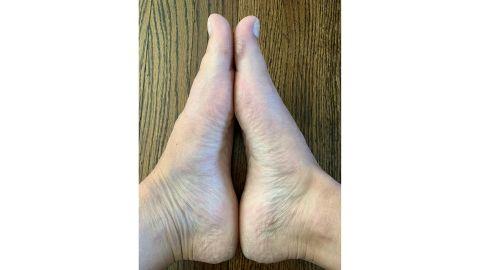 My feet before Baby Foot