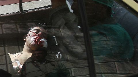 An injured man lying in the back of a vehicle is rushed to a hospital in Daraa, Syria, on March 23, 2011. Violence flared in Daraa after a group of teens and children were arrested for writing political graffiti. Dozens of people were killed when security forces cracked down on demonstrations.