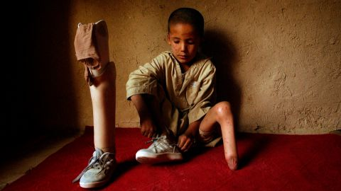 Mohammaed Mahdi, who lost his foot in a mine explosion, waits for a Red Cross doctor at his home in Kabul in August 2004. This photo was taken by Associated Press photographer Emilio Morenatti, who five years later lost part of his leg when the armored vehicle he was in hit a roadside bomb.