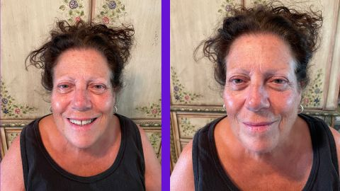 Peter Thomas Roth Instant Firmx Eye Temporary Eye Tightener Before and After